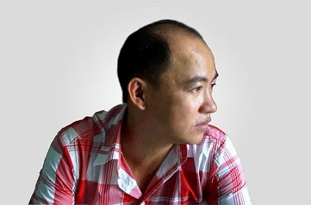 Hói đầu do di truyền   chữa thế nào là tốt nhất?