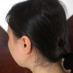 Trị rụng tóc sau sinh sao cho hiệu quả nhất?