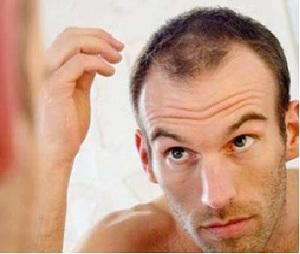Giải pháp ngăn ngừa rụng tóc với Green Hair