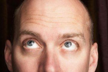 Các phương pháp điều trị rụng tóc hói đầu