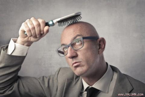 6 phương pháp tự nhiên trị hói đầu