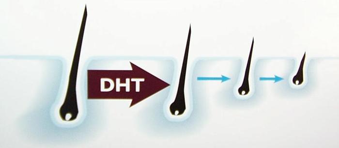 DHT-lam-teo-nho-nang-toc