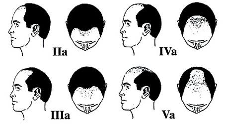 Nguyên nhân và cách điều trị bệnh hói đầu