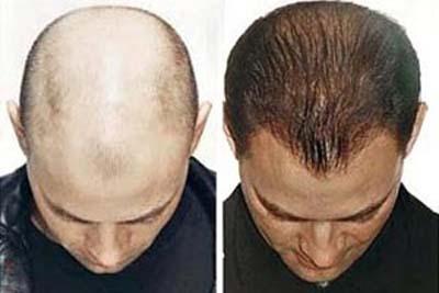Phương pháp chữa rụng tóc và chăm sóc tóc tốt nhất