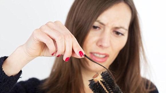 Image result for Bệnh rụng tóc ở phụ nữ