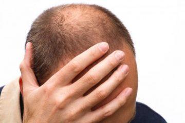 Triệu chứng của từng loại bệnh rụng tóc