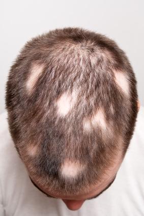 Nguyên nhân và cách điều trị rụng tóc từng mảng