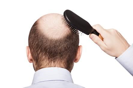Nguyên nhân gây hói đầu sớm ở nam giới