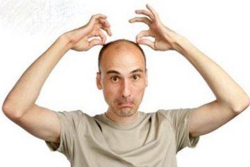 Các triệu chứng cảnh báo mắc bệnh hói đầu