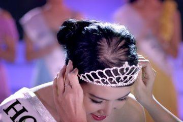Hoa hậu mà rụng tóc? Có lẽ nào…