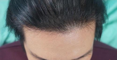 Bí quyết ngăn rụng tóc của MC Công Danh