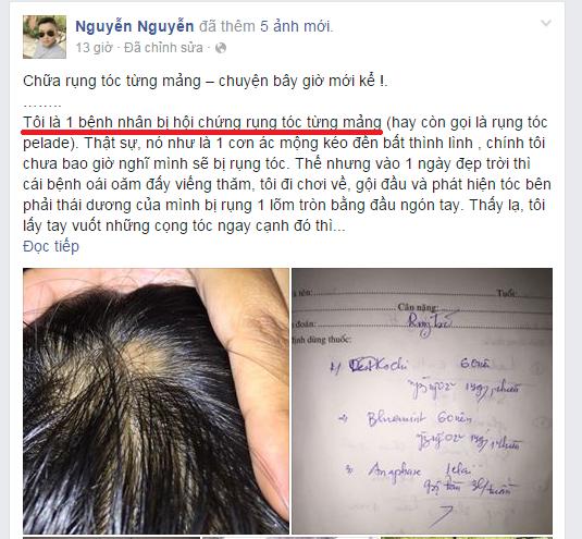 Rụng tóc từng mảng   bệnh khó chữa hay do bạn chưa tìm đúng cách?