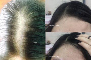 Bất ngờ với hiệu quả mọc tóc của bà mẹ trẻ 2 con