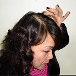 Cảnh báo: Có thể bạn đang mất dần khả năng mọc lại tóc