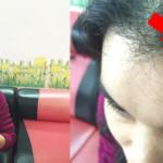 Phục hồi tóc gãy rụng sau khi uốn, ép như thế nào?