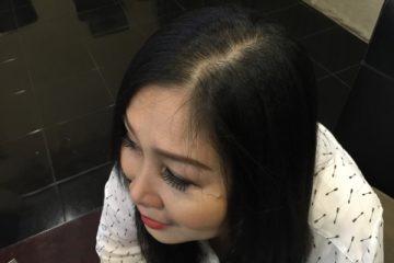 Danh hài Hồng Vân chia sẻ cách hay giúp tóc mọc lại nhanh