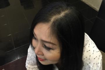 Danh hài Hồng Vân chia sẻ bí quyết giúp tóc mọc lại nhanh
