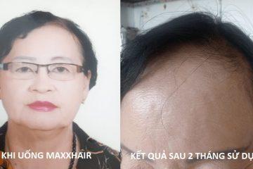 U80 chỉ giúp chị em cách mọc tóc nhanh: Tuổi nào cũng áp dụng được