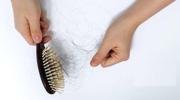 postpartum-hair-fall