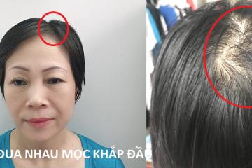 Quá nửa đời người mới tìm được cách trị rụng tóc hiệu quả như này
