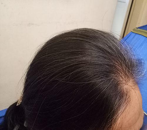 Bà lão 70 tuổi thoát nỗi lo rụng tóc nhờ có cháu ở Nhật