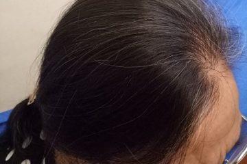 Đến già cũng không lo rụng tóc nếu ai cũng biết áp dụng cách này