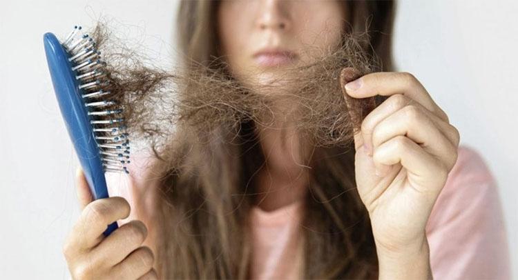 15 loại dầu gội trị rụng tóc và kích thích mọc tóc nhanh hiệu quả   giamcanlamdep.com.vn